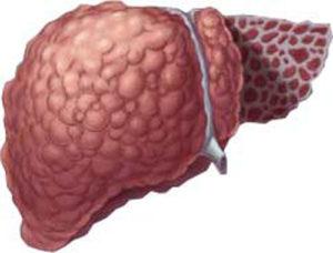 Признаки рака печени у женщин