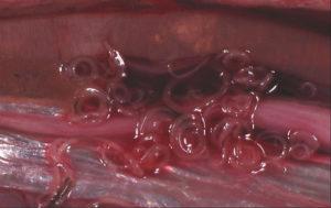 Какие паразиты живут в печени человека и как их выводить
