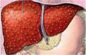 Симптомы и лечение аутоиммунных заболеваний печени