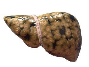 Симптомы и лечение ожирения печени