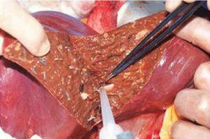 Сколько живут больные раком печени 4 стадии