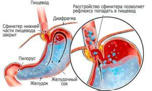 Как можно лечить заброс желчи в пищевод
