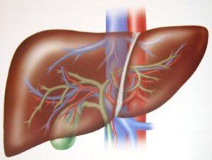 Стеатоз печени – причины, симптомы и лечение