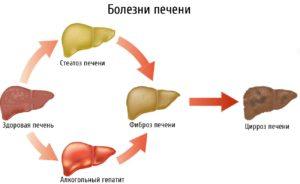 лечение стеатоза печени в домашних условиях