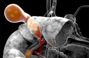 Лечение и последствия деформация желчного пузыря