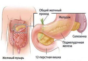 последствия деформация желчного пузыря
