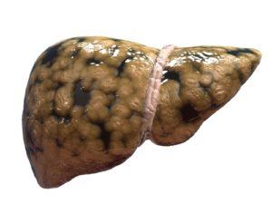 Лечится или нет цирроз печени и какие прогнозы