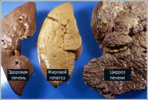 Что происходит с печенью при циррозе