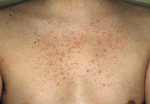 Почему появляются кожные высыпания при заболевании печени