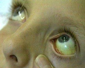 Симптомы и лечение гемолитической желтухи