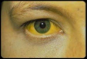 Рацион при гемолитической желтухе