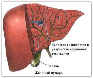 лечение холестатического гепатоза