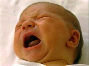 Симптомы и лечение неонтальной желтухи новорожденных