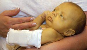 Симптомы неонтальной желтухи новорожденных