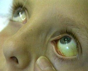Симптомы и лечение обтурационной желтухи