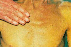 лечение обтурационной желтухи
