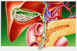 лечение выброса желчи в желудок