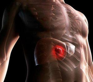 Сколько живут больные фиброзом печени 4 степени
