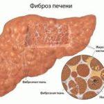 Сколько живут больные фиброзом печени