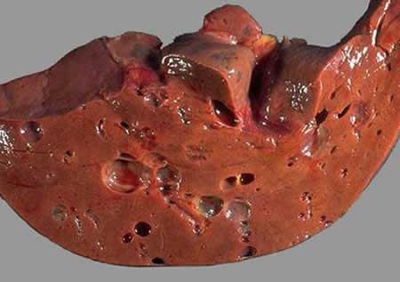 Киста печени: причины, симптомы и лечение