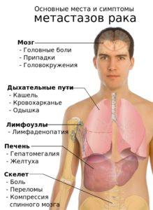прогноз для больного, если найдены метастазы в печени