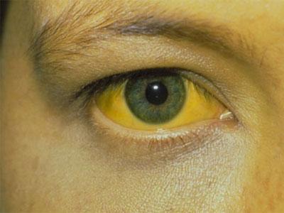 Непрямой билирубин повышен у ребенка или взрослого: причины и лечение