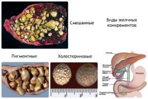 способы дробления камней в желчном пузыре