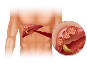 осложнения при циррозе печени