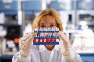 повышен билирубин в крови у женщин