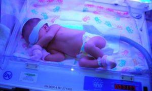 билирубин в крови у новорожденных