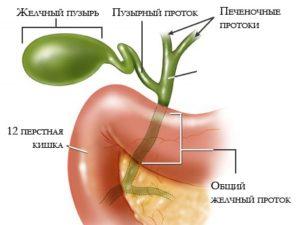 бескаменного холецистита