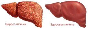 острого токсического гепатита