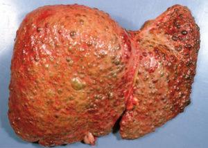 портального цирроза печени