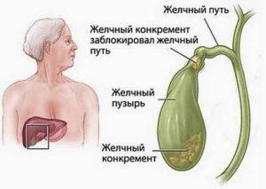 постхолецистэктомического синдром
