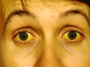 синдрома Жильбера