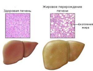 жировой дегенерации печени